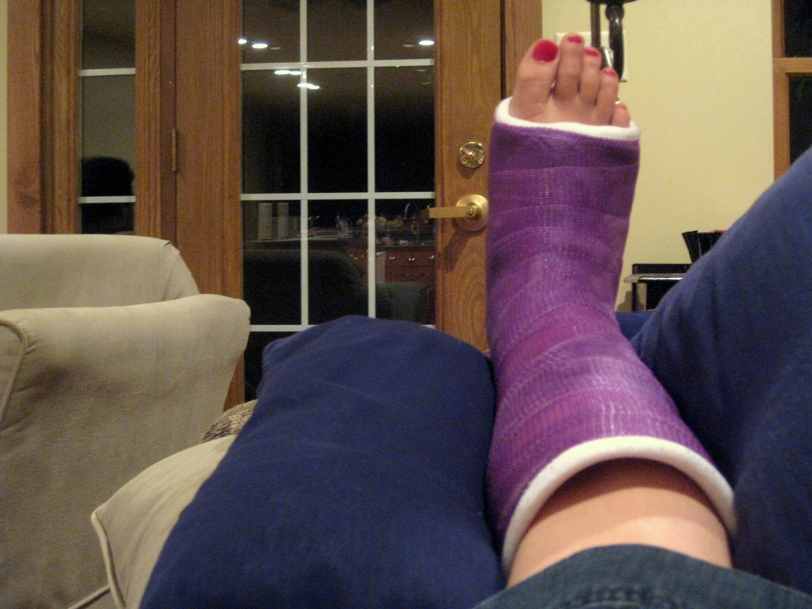 """The life and times"""" or """"A Purple Cast"""" 